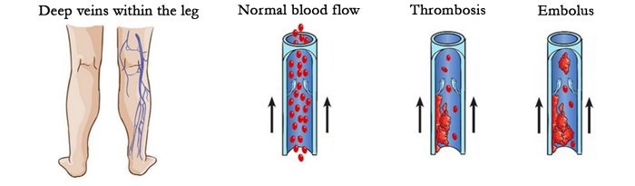 thrombosis, blood clot or embolus compared to normal blood flow