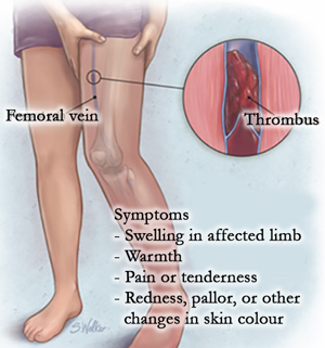 Symptoms of blood clots or deep vein thrombosis