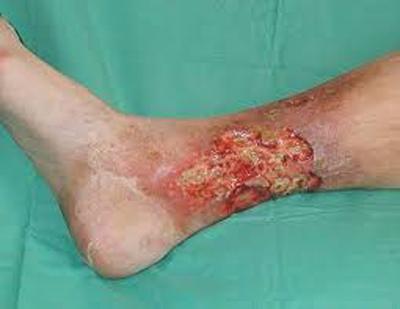 Leg ulcer from diabetes